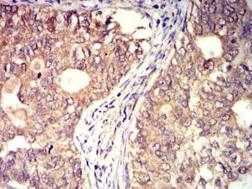 Immunohistochemistry (Formalin/PFA-fixed paraffin-embedded sections) - Anti-BTN2A2/BTF2 antibody [6C7D2] (ab233763)
