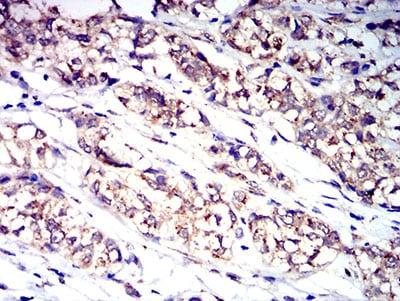 Immunohistochemistry (Formalin/PFA-fixed paraffin-embedded sections) - Anti-GCSF Receptor antibody [8F8B12] (ab233783)