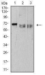 Western blot - Anti-CD42b antibody [6H6H10] (ab233794)