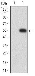 Western blot - Anti-Nicotinic Acetylcholine Receptor epsilon/CHRNE antibody [4E10F6] (ab233831)