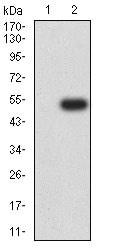 Western blot - Anti-GCSF Receptor antibody [3G10G2] (ab233833)