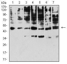Western blot - Anti-KIR3DL1 antibody [6D9A4] (ab233835)