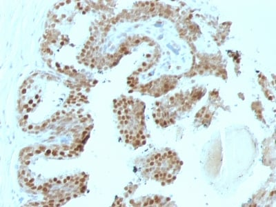 Immunohistochemistry (Formalin/PFA-fixed paraffin-embedded sections) - Anti-p57 Kip2 antibody [SPM308] (ab233849)