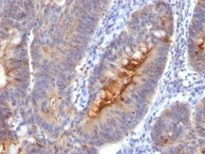Immunohistochemistry (Formalin/PFA-fixed paraffin-embedded sections) - Anti-Extracellular matrix protein 1 antibody [SC05] (ab233863)