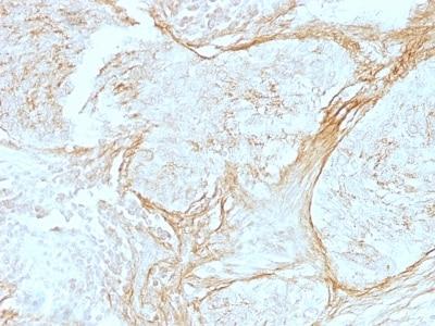 Immunohistochemistry (Formalin/PFA-fixed paraffin-embedded sections) - Anti-Tenascin C antibody [SPM319] (ab233882)