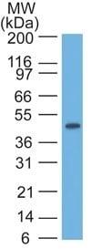 Western blot - Anti-Cytokeratin 17 antibody [SPM560] (ab233912)