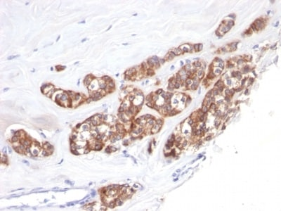Immunohistochemistry (Formalin/PFA-fixed paraffin-embedded sections) - Anti-Cytokeratin 18 antibody [SPM510] (ab233914)