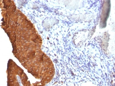 Immunohistochemistry (Formalin/PFA-fixed paraffin-embedded sections) - Anti-Cytokeratin 19 antibody [SPM561] (ab233917)