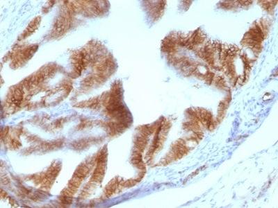 Immunohistochemistry (Formalin/PFA-fixed paraffin-embedded sections) - Anti-EpCAM antibody [EGP40/1110] (ab233919)