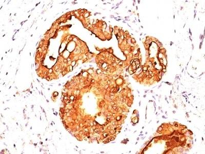Immunohistochemistry (Formalin/PFA-fixed paraffin-embedded sections) - Anti-MUC1 antibody [MUC1/955] (ab233933)