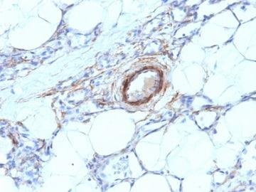 Immunohistochemistry (Formalin/PFA-fixed paraffin-embedded sections) - Anti-smooth muscle Myosin heavy chain I antibody [MYH11/923] (ab233940)