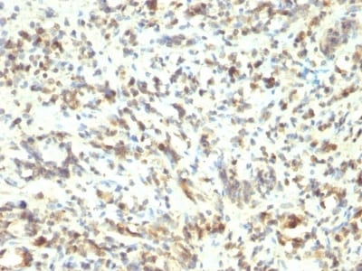 Immunohistochemistry (Formalin/PFA-fixed paraffin-embedded sections) - Anti-MyoD1 antibody [5.8A] (ab233941)