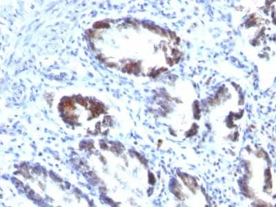 Immunohistochemistry (Formalin/PFA-fixed paraffin-embedded sections) - Anti-TAGLN/Transgelin antibody [TAGLN/247] (ab233971)