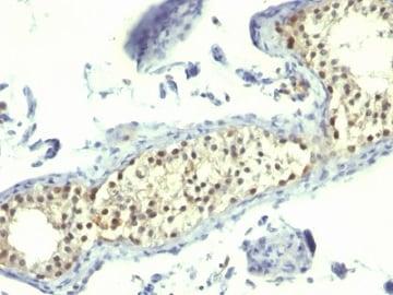Immunohistochemistry (Formalin/PFA-fixed paraffin-embedded sections) - Anti-Thymidylate Synthase antibody [TS106] (ab233980)