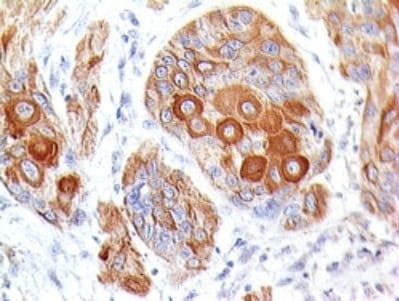 Immunohistochemistry (Formalin/PFA-fixed paraffin-embedded sections) - Anti-CD86 antibody [BU63] (ab234000)