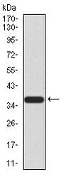 Western blot - Anti-KDM2B antibody [6F6G11] (ab234082)