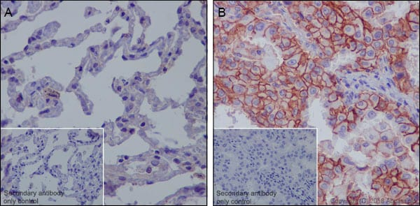 Immunohistochemistry (Formalin/PFA-fixed paraffin-embedded sections) - Anti-MRP1 antibody [EPR21061] - BSA and Azide free (ab234104)