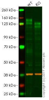 Western blot - Anti-CD130 (gp130) antibody [EPR21732] - BSA and Azide free (ab234105)