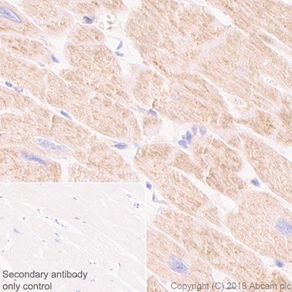 Immunohistochemistry (Formalin/PFA-fixed paraffin-embedded sections) - Anti-CPT1A antibody [EPR21843-71-2F] (ab234111)