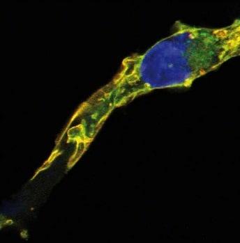 Immunocytochemistry/ Immunofluorescence - Anti-TC21 antibody [EM-50] (ab234145)