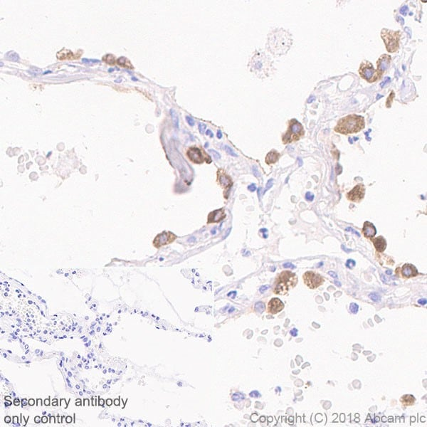 Immunohistochemistry (Formalin/PFA-fixed paraffin-embedded sections) - Anti-Surfactant protein D/SP-D antibody [EPR21928-209] - BSA and Azide free (ab234257)