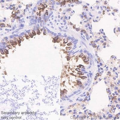 Immunohistochemistry (Formalin/PFA-fixed paraffin-embedded sections) - Anti-Surfactant protein D/SP-D antibody [EPR21774-153] - BSA and Azide free (ab234260)