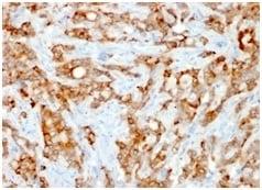 Immunohistochemistry (Formalin/PFA-fixed paraffin-embedded sections) - Anti-beta 2 Microglobulin antibody [rB2M/961] (ab234404)