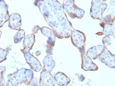 Immunohistochemistry (Formalin/PFA-fixed paraffin-embedded sections) - Anti-MMP3 antibody [rMMP3/1730] (ab234405)