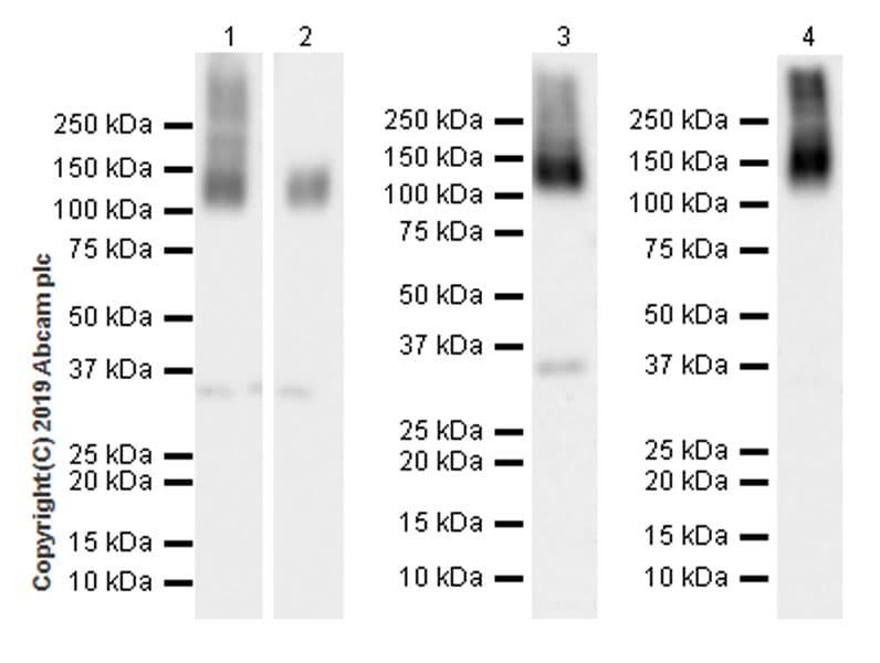 Western blot - Anti-ANO6 antibody [EPR20910-105] (ab234422)