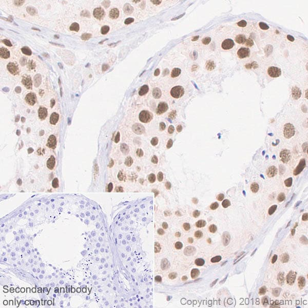 Immunohistochemistry (Formalin/PFA-fixed paraffin-embedded sections) - Anti-ALKBH5 antibody [EPR18958] - BSA and Azide free (ab234528)