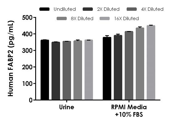Interpolated concentrations of spiked FABP2 in human urine and RPMI media with 10% FBS.