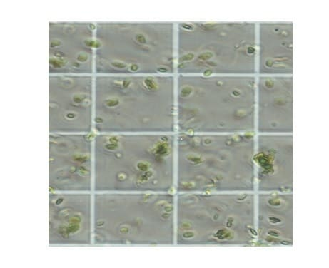Light microscopy of chloroplasts isolated from Ficus leaves