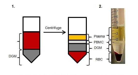 Density gradient centrifugation