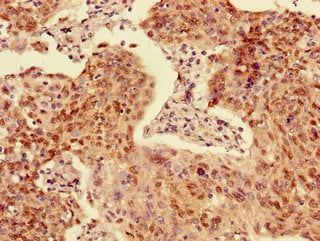 Immunohistochemistry (Formalin/PFA-fixed paraffin-embedded sections) - Anti-ACYP2 antibody (ab234636)