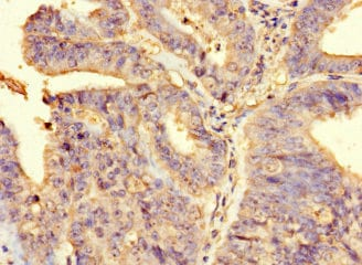 Immunohistochemistry (Formalin/PFA-fixed paraffin-embedded sections) - Anti-FAM65B antibody (ab234646)
