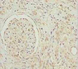 Immunohistochemistry (Formalin/PFA-fixed paraffin-embedded sections) - Anti-GNB1L/GY2 antibody (ab234648)