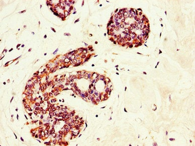 Immunohistochemistry (Formalin/PFA-fixed paraffin-embedded sections) - Anti-GRAMD4 antibody (ab234649)