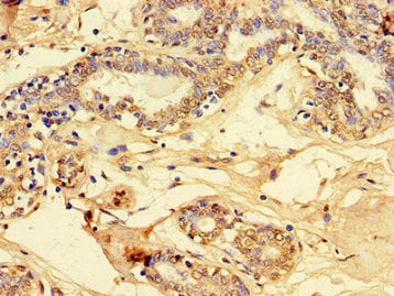 Immunohistochemistry (Formalin/PFA-fixed paraffin-embedded sections) - Anti-PET100 antibody (ab234668)