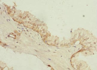 Immunohistochemistry (Formalin/PFA-fixed paraffin-embedded sections) - Anti-TSSC3 antibody (ab234669)