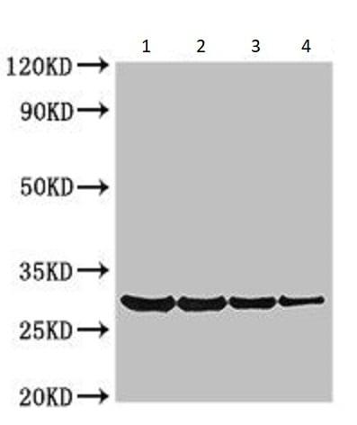 Western blot - Anti-Profilin antibody (ab234674)