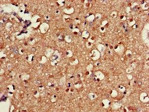 Immunohistochemistry (Formalin/PFA-fixed paraffin-embedded sections) - Anti-SAMD8 antibody (ab234679)