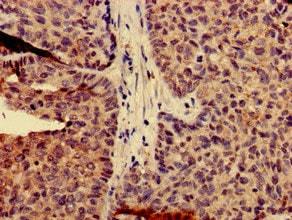 Immunohistochemistry (Formalin/PFA-fixed paraffin-embedded sections) - Anti-Calpain 14 antibody (ab234692)