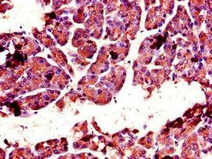 Immunohistochemistry (Formalin/PFA-fixed paraffin-embedded sections) - Anti-CTRL antibody (ab234694)
