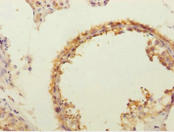 Immunohistochemistry (Formalin/PFA-fixed paraffin-embedded sections) - Anti-FLVCR2 antibody (ab234712)