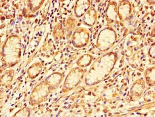Immunohistochemistry (Formalin/PFA-fixed paraffin-embedded sections) - Anti-GALNT11 antibody (ab234713)