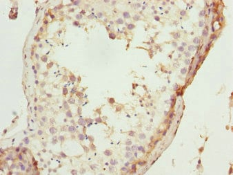 Immunohistochemistry (Formalin/PFA-fixed paraffin-embedded sections) - Anti-TAF11 antibody (ab234721)