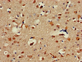Immunohistochemistry (Formalin/PFA-fixed paraffin-embedded sections) - Anti-Alx1 antibody (ab234726)