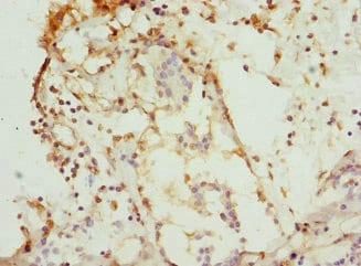 Immunohistochemistry (Formalin/PFA-fixed paraffin-embedded sections) - Anti-CSNK1G1 antibody (ab234727)