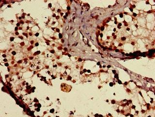 Immunohistochemistry (Formalin/PFA-fixed paraffin-embedded sections) - Anti-SLCO1C1 antibody (ab234729)