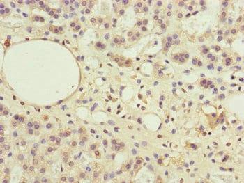 Immunohistochemistry (Formalin/PFA-fixed paraffin-embedded sections) - Anti-PPP2R3B antibody (ab234731)